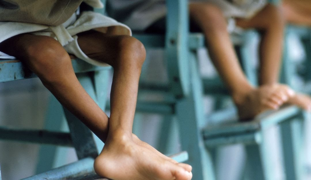 En Colombia siguen muriendo niños por falta de alimentación
